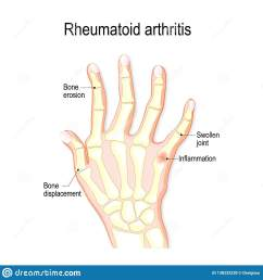 hand with rheumatoid arthritis and typical joint swelling and deformation of the fingers and knuckles bone anatomy vector illustration for medical use [ 1600 x 1689 Pixel ]