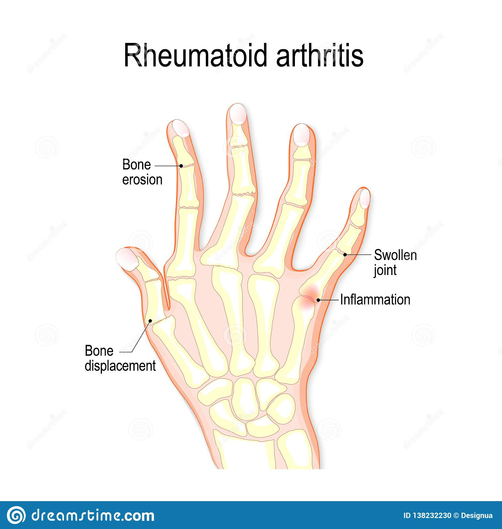 hight resolution of hand with rheumatoid arthritis and typical joint swelling and deformation of the fingers and knuckles bone anatomy vector illustration for medical use