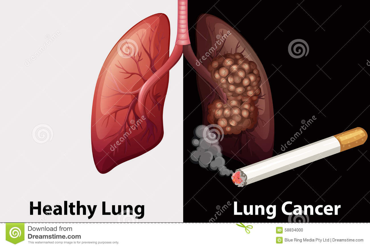 healthy lung against lung