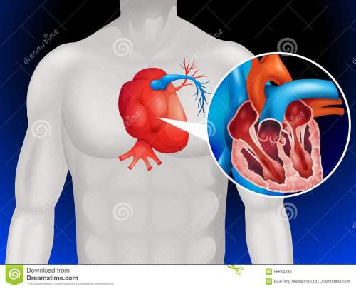 small resolution of heart disease diagram in detail