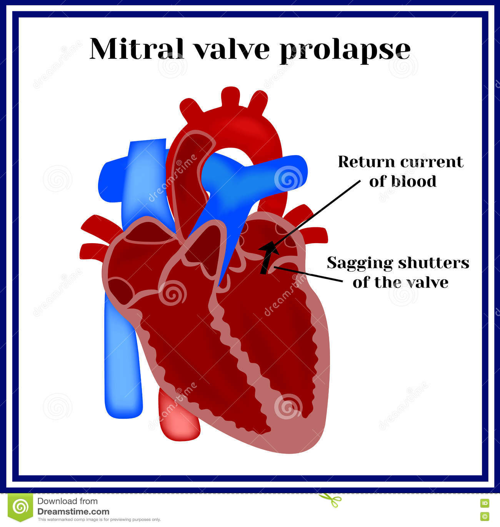 Prolapse Mitral Valve Anatomy