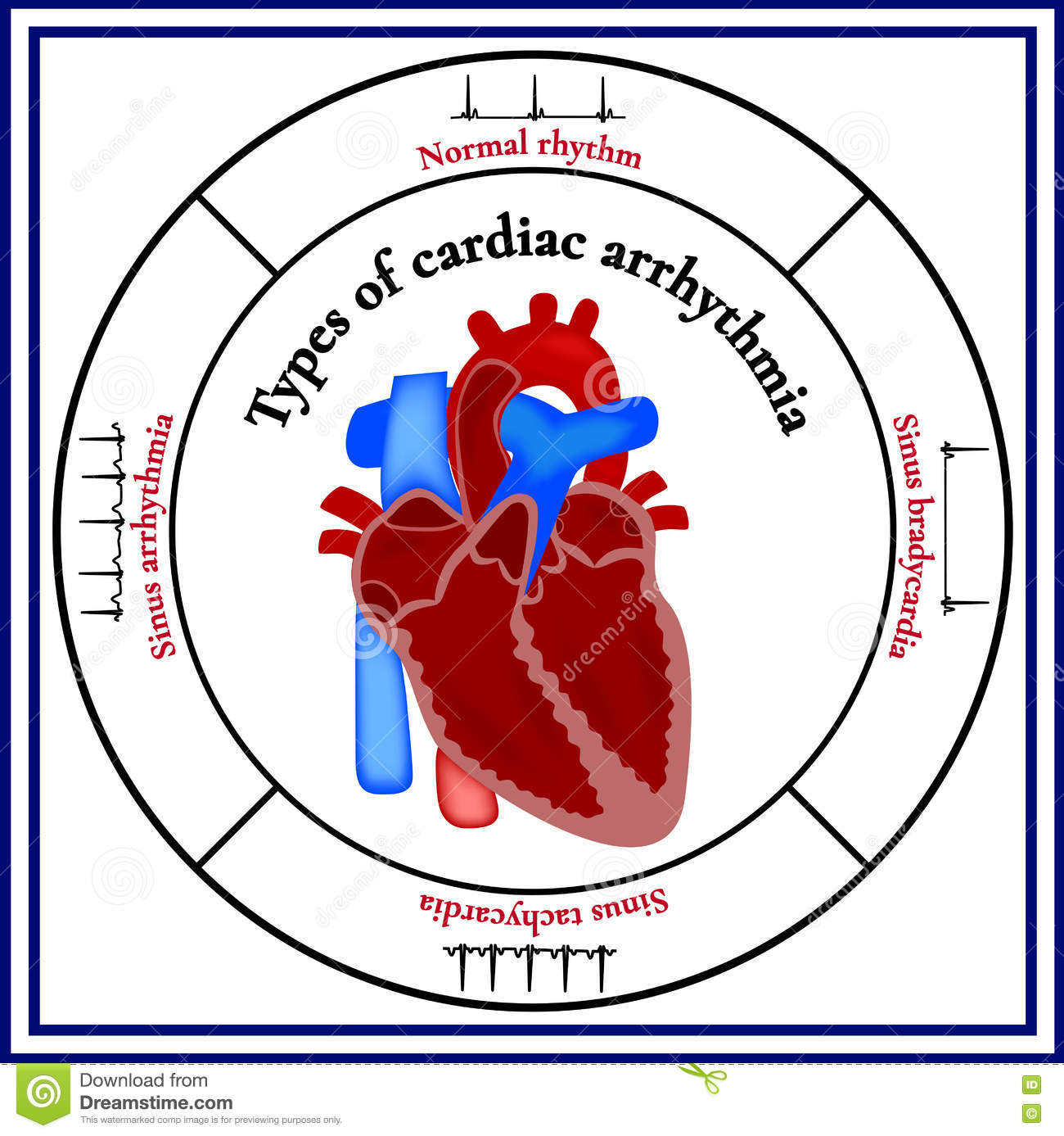 Heart Structure Types Of Cardiac Arrhythmia Stock Vector