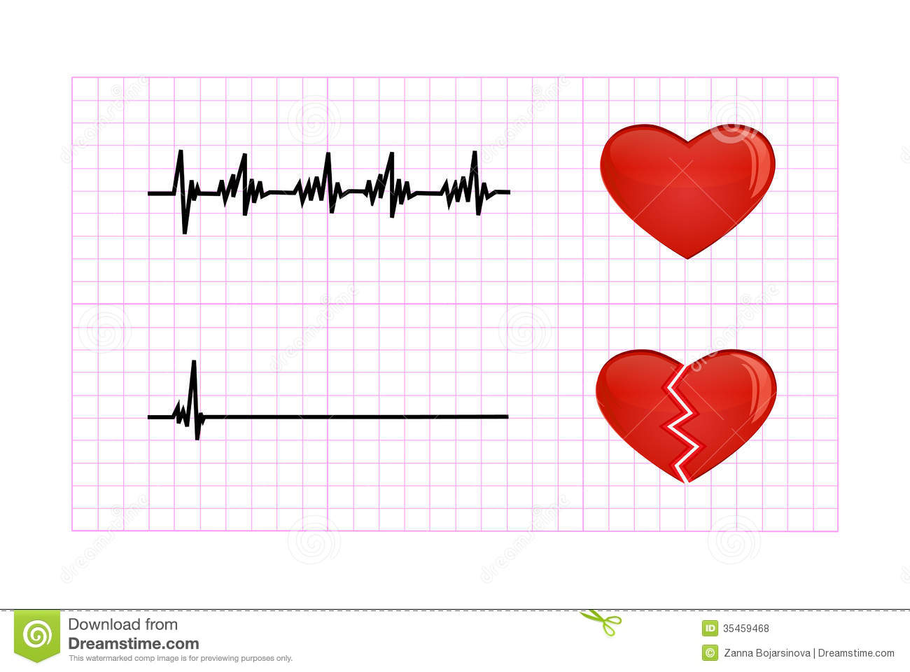 heart beat diagram cat5e plug wiring heartbeat illustration royalty free stock photos