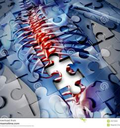 human back disease medical concept with a jigsaw puzzle texture and a piece missing as a broken skeleton anatomy and a symbol of the spine and joint pain  [ 1300 x 1149 Pixel ]