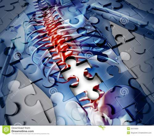 small resolution of human back disease medical concept with a jigsaw puzzle texture and a piece missing as a broken skeleton anatomy and a symbol of the spine and joint pain