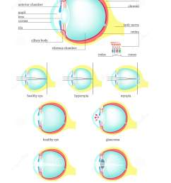 human eye anatomy cross section medical diagram vector flat isolated illustration structure of healthy eye and with glaucoma cataract hyperopia  [ 1280 x 1689 Pixel ]