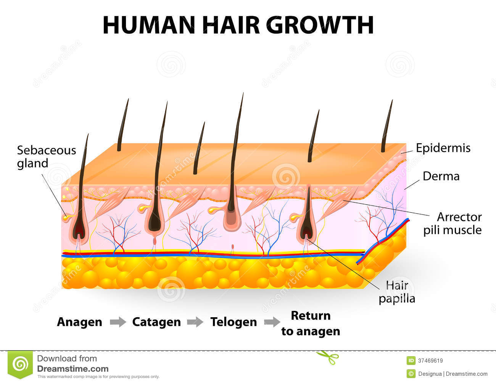 Human Hair Growth Stock Vector Illustration Of Alopecia