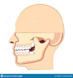 human head with teeth jaw and wisdom tooth inside [ 1600 x 1689 Pixel ]
