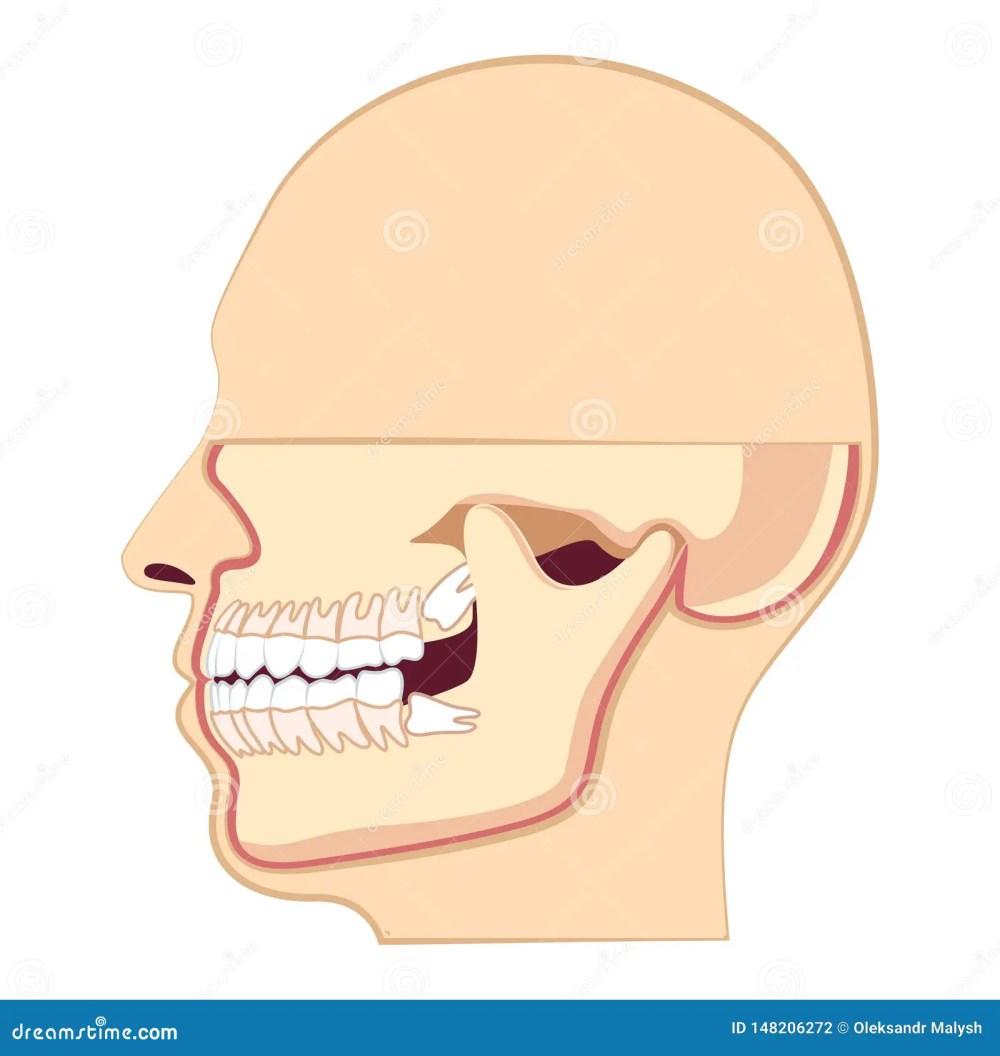 medium resolution of human head with teeth jaw and wisdom tooth inside