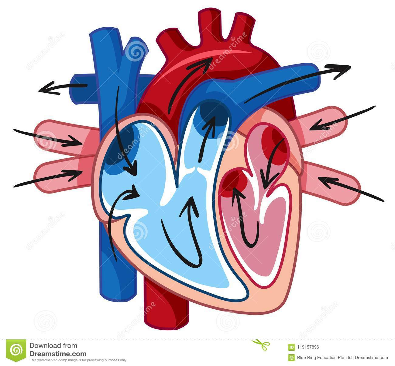 Coronary Arteries And Plaque Formation Cartoon Vector
