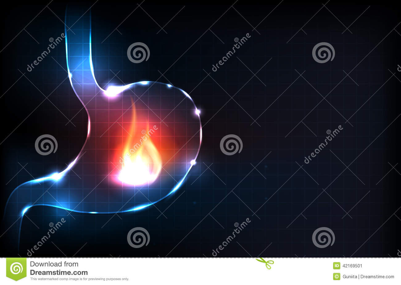 Human stomach burning stock vector Image of design card