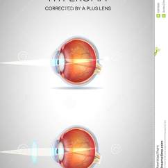 Diagram Of Human Cartoon 120 240 Single Phase Wiring Longsighted Eye Vector | Cartoondealer.com #8085265
