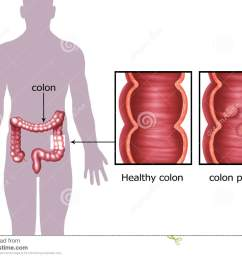 illustration of the colon cancer [ 1300 x 1010 Pixel ]