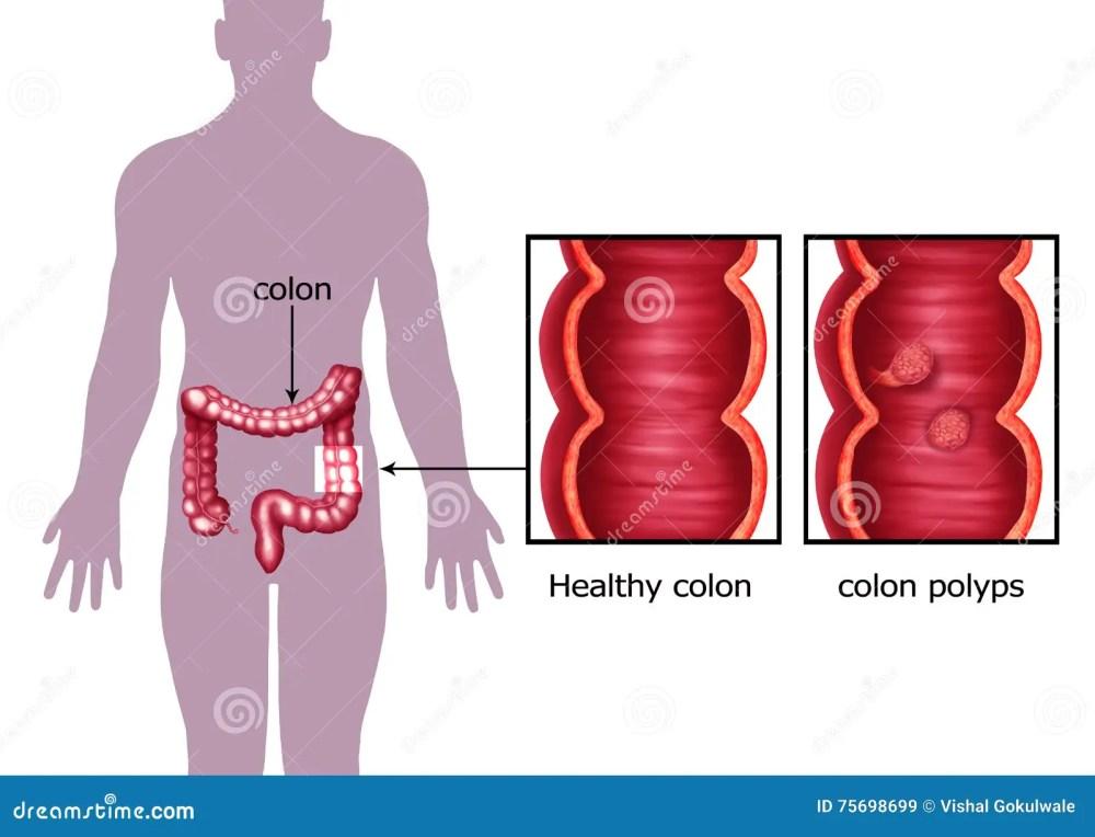 medium resolution of illustration of the colon cancer