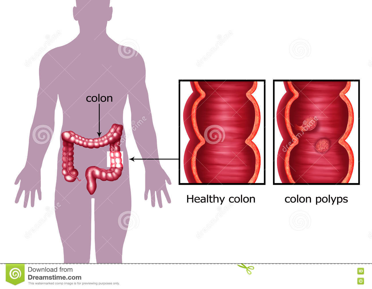 hight resolution of illustration of the colon cancer