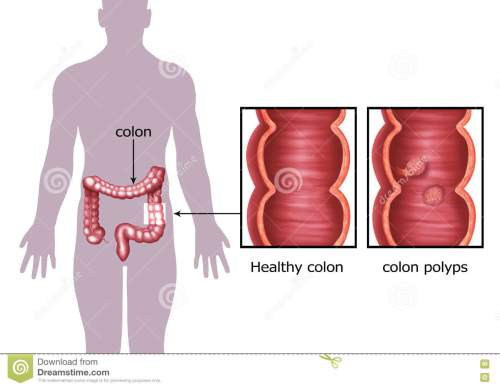small resolution of illustration of the colon cancer