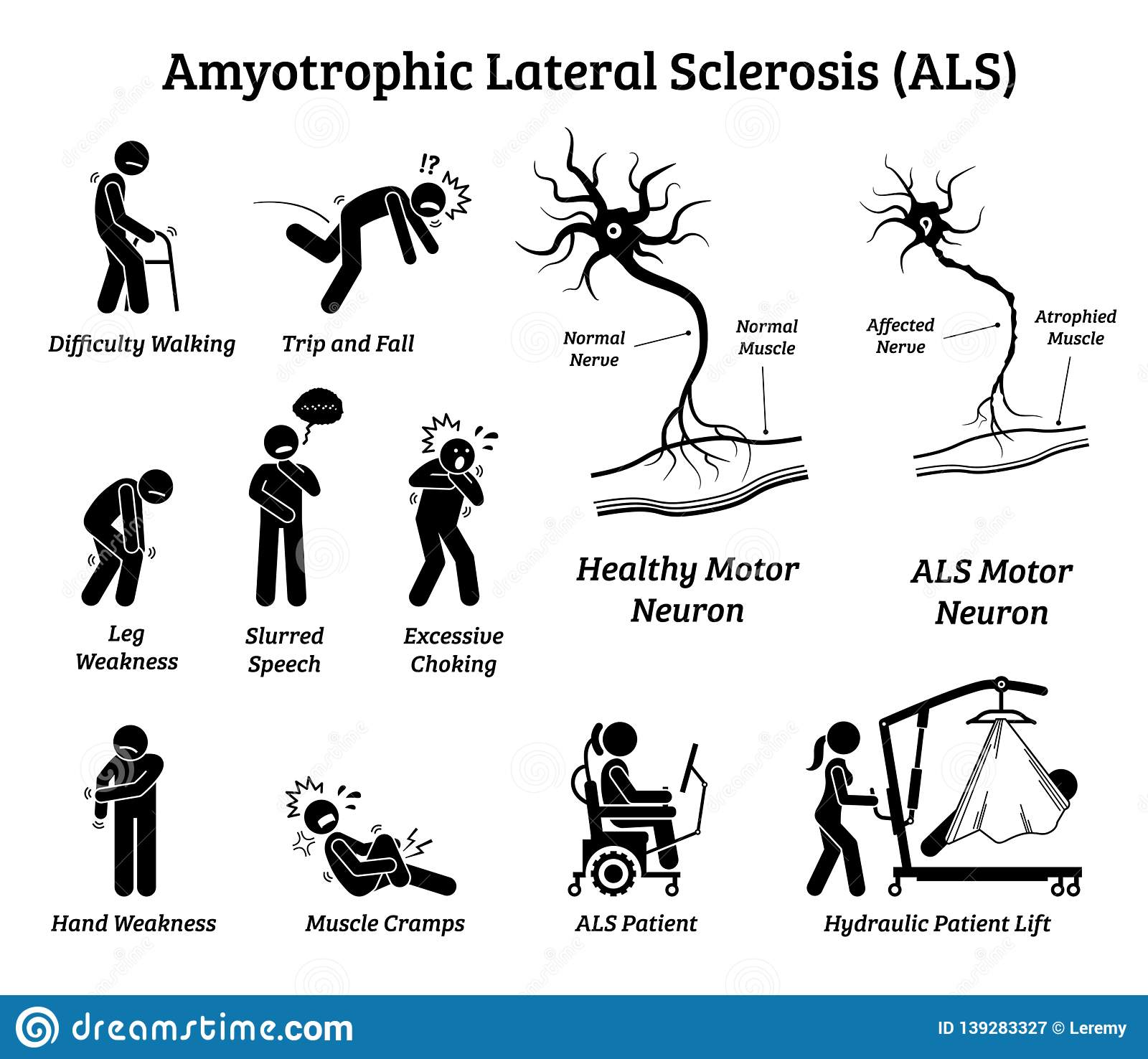Amyotrophic Lateral Sclerosis ALS Disease Signs And ...