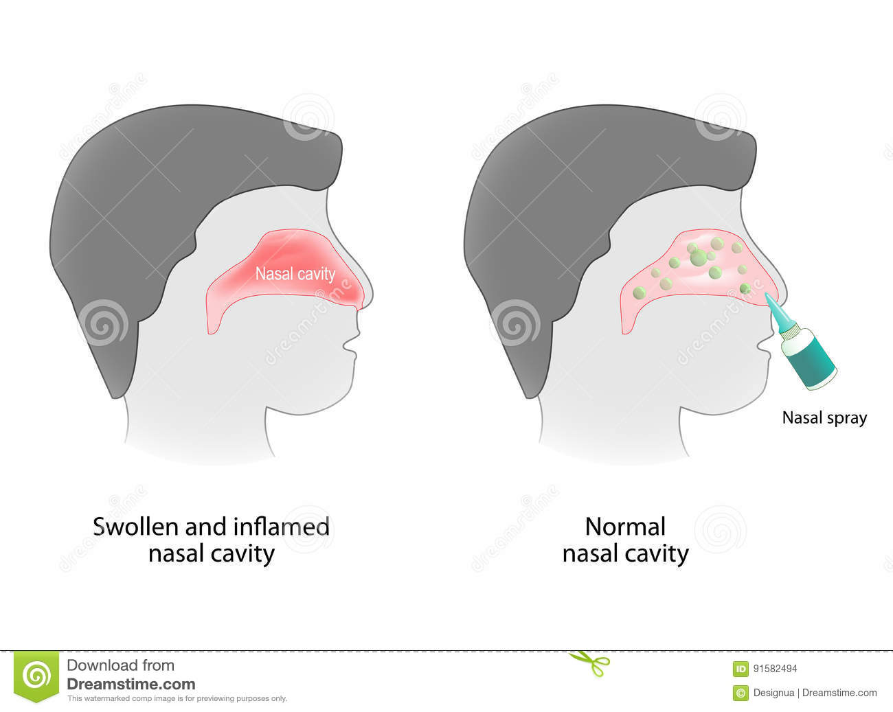 human sinus cavities diagram rock cycle fill in adenoid cartoons illustrations and vector stock images 20