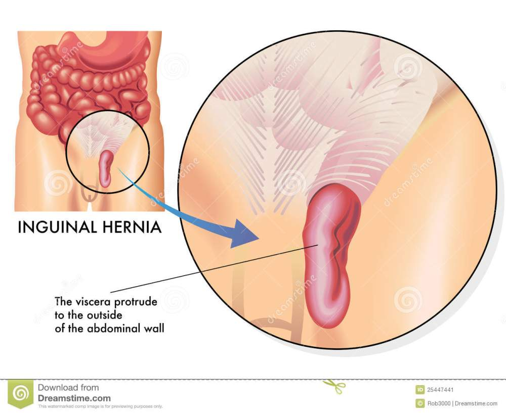 medium resolution of medical illustration of the effects of the inguinal hernia
