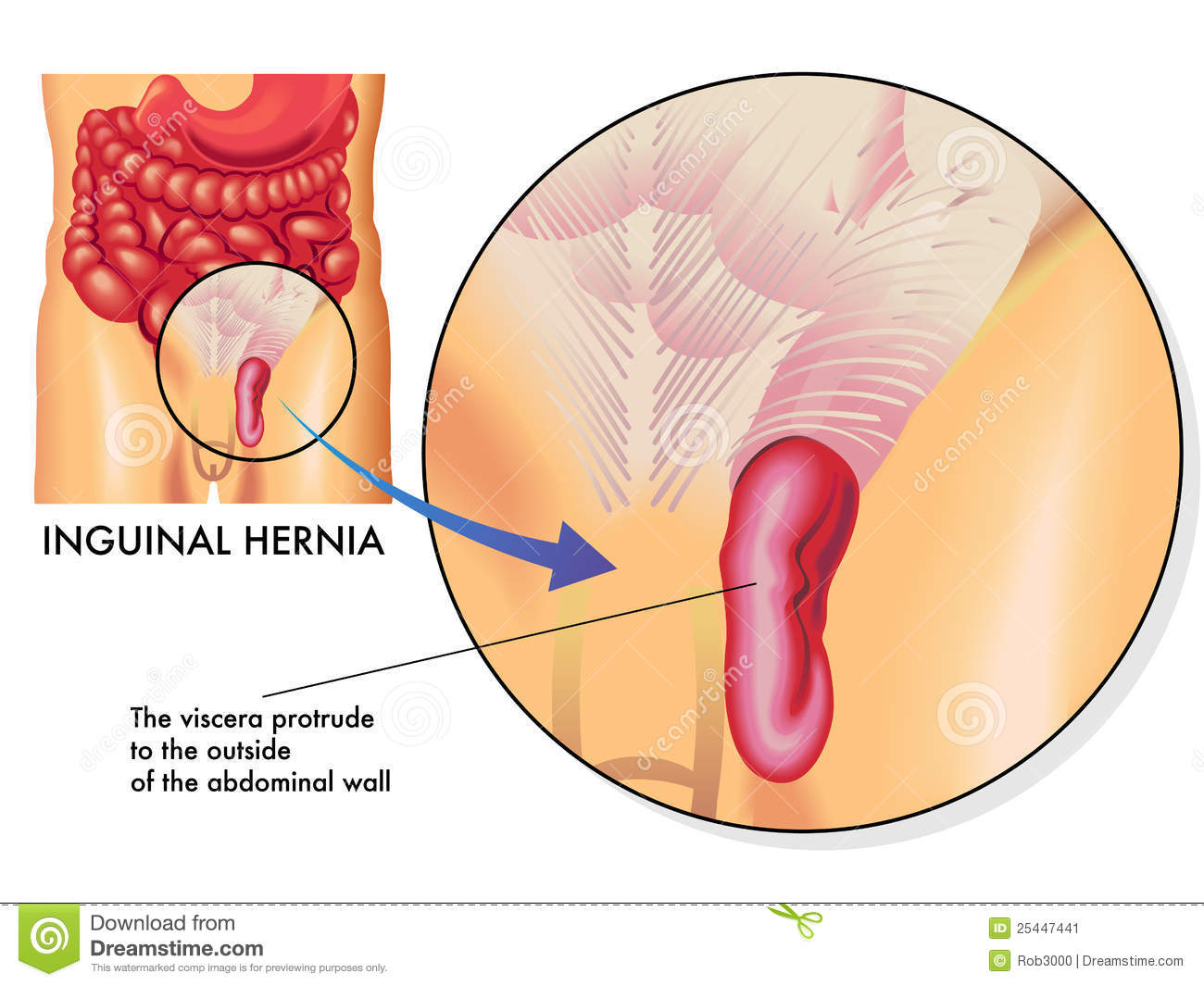 hight resolution of medical illustration of the effects of the inguinal hernia