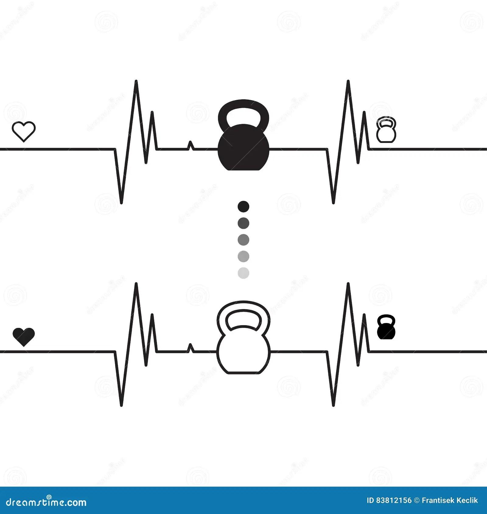 electrocardiogram diagram