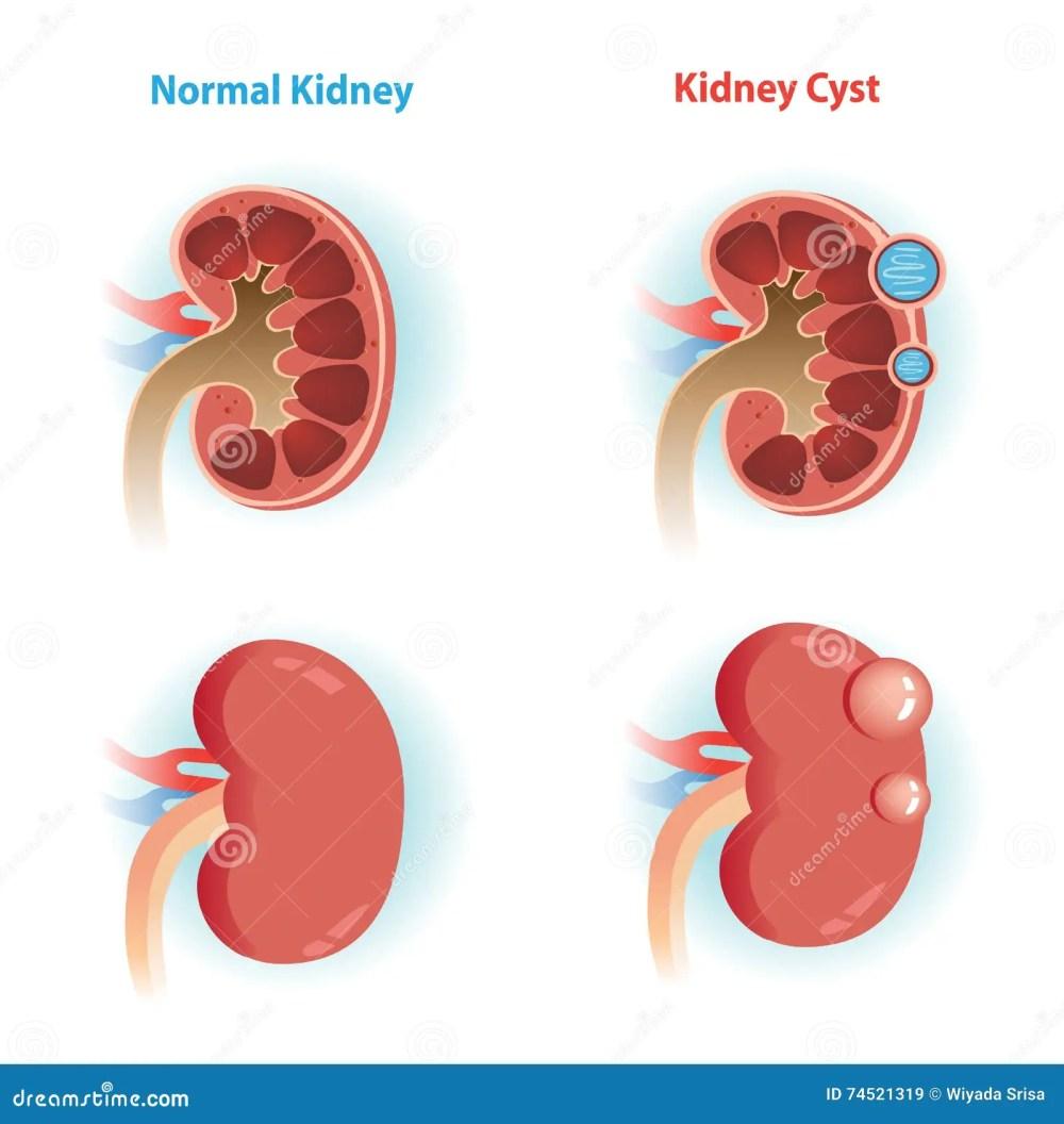 medium resolution of kidney cyst disease and normal kidney vector illustrations