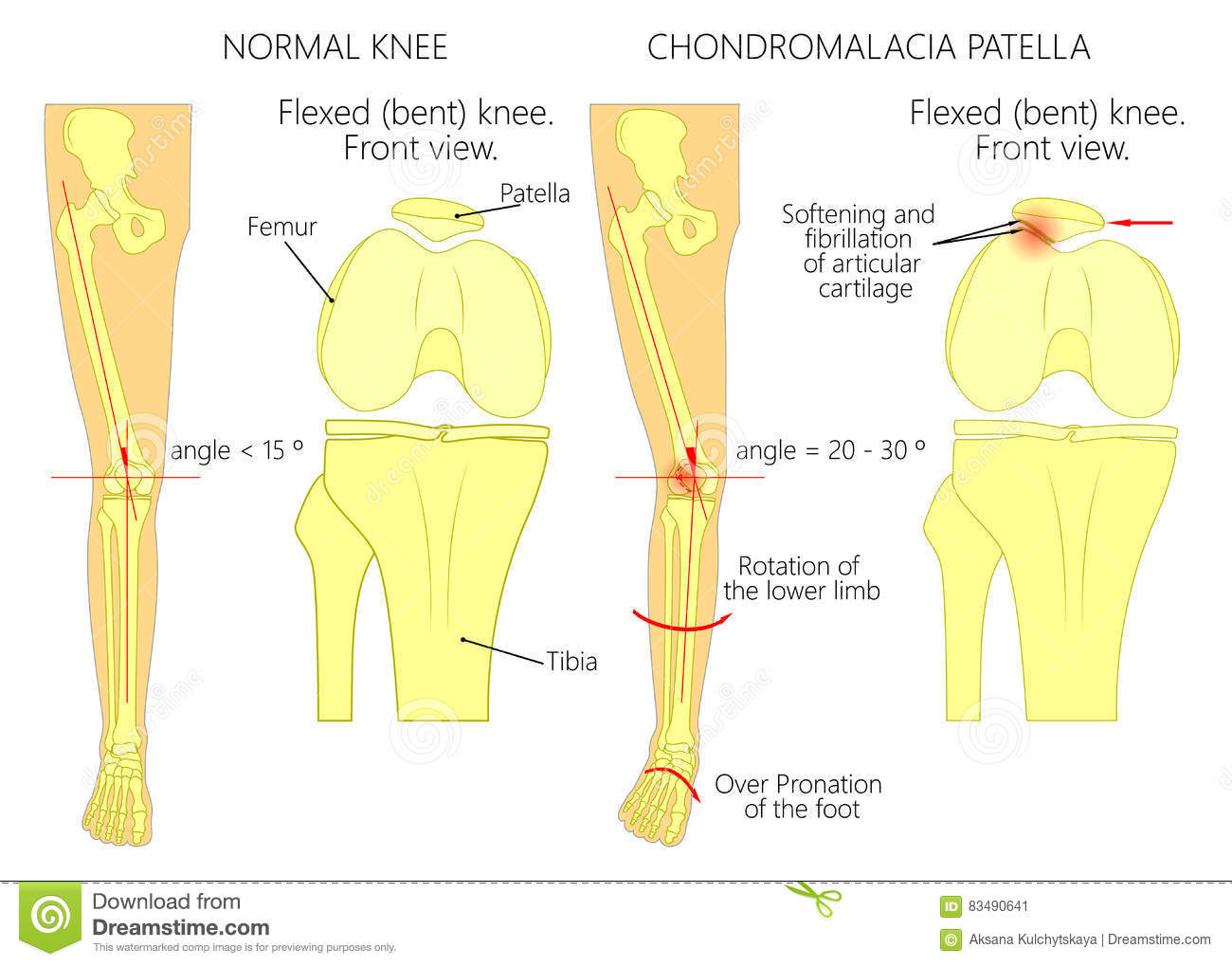 hight resolution of illustration diagram of normal leg with a healthy knee and a leg with over pronation of the foot arch and chondromalacia patella used gradient blend mode