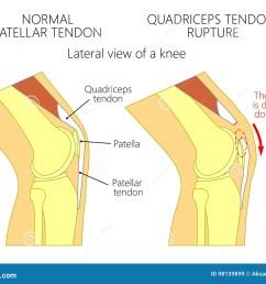 patella tendon stock illustrations 197 patella tendon stock illustrations vectors clipart dreamstime [ 1300 x 1035 Pixel ]