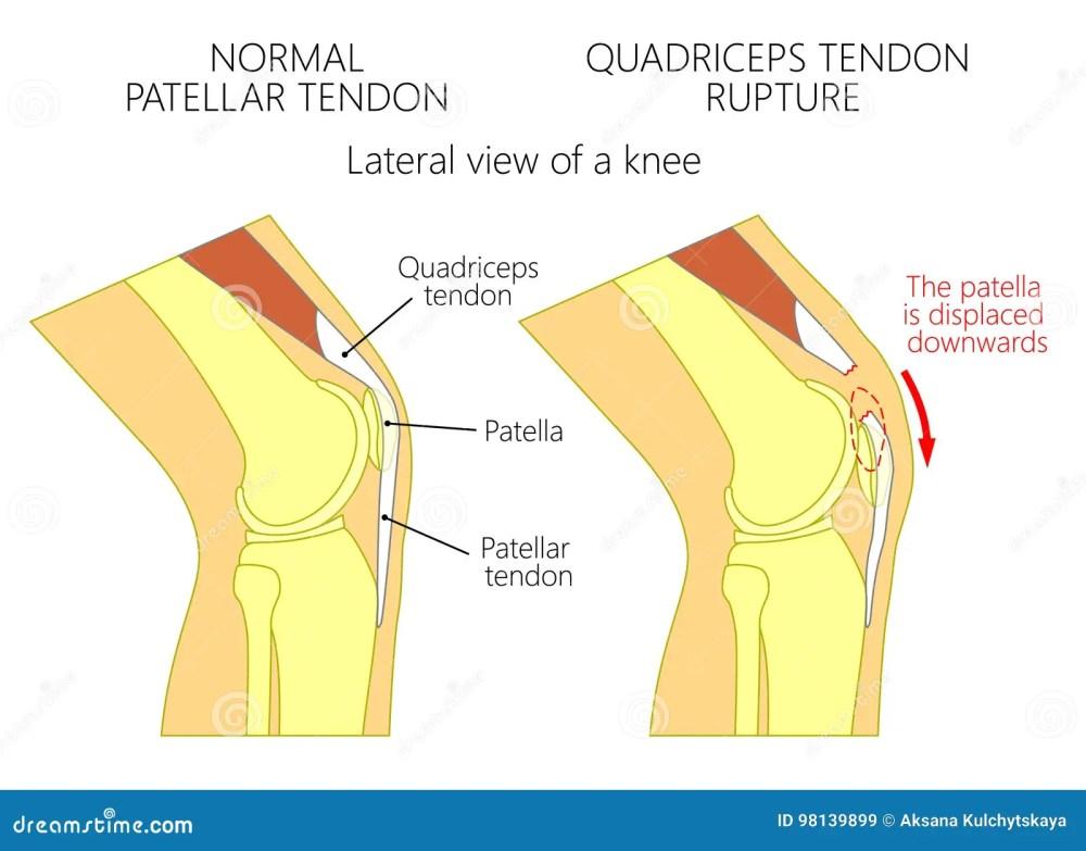 medium resolution of patella tendon stock illustrations 197 patella tendon stock illustrations vectors clipart dreamstime
