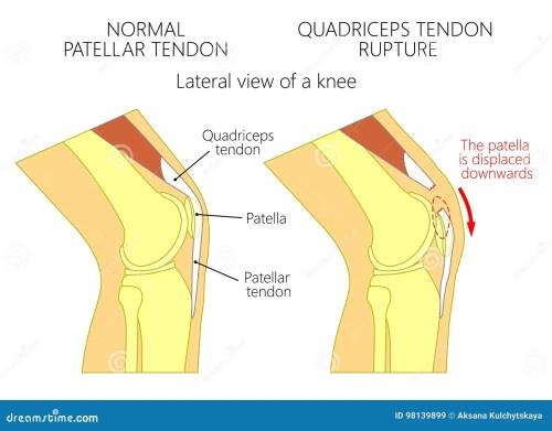 small resolution of patella tendon stock illustrations 197 patella tendon stock illustrations vectors clipart dreamstime