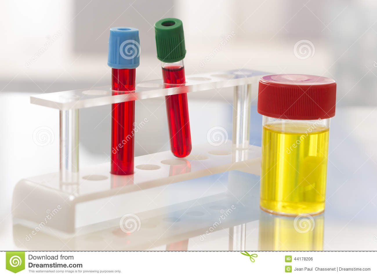 Urine And Blood Test Complete Blood Count Royalty Free Stock Image