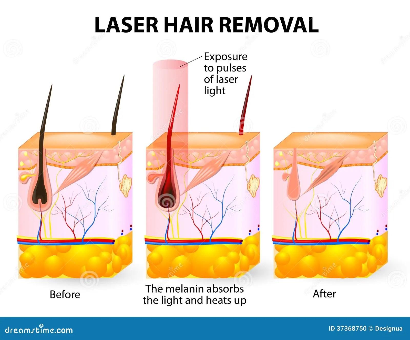 Laser Hair Removal Vector Diagram Stock Vector