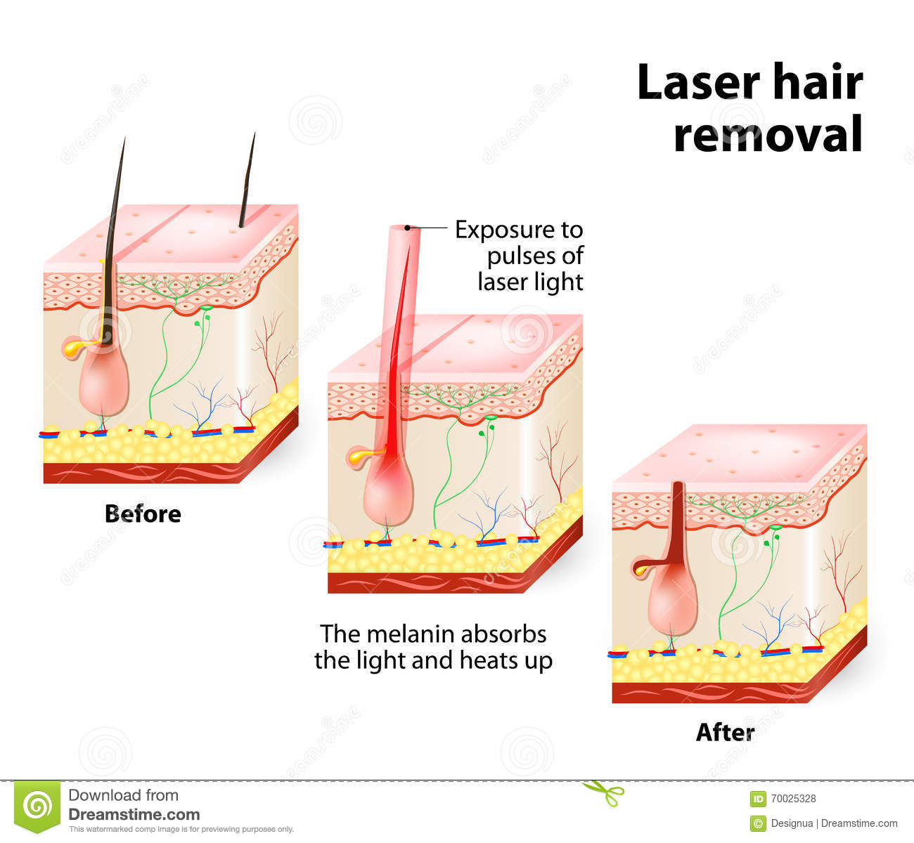 working of laser printer with diagram 220 dryer outlet wiring hair removal vector stock image