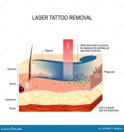 laser tattoo removal  [ 1300 x 1390 Pixel ]