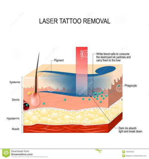 small resolution of laser tattoo removal