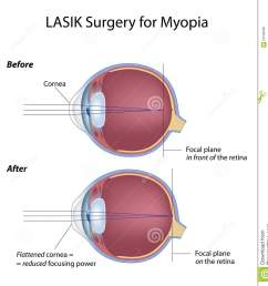 myopia eye before and after lasik surgery eps8 [ 1305 x 1300 Pixel ]