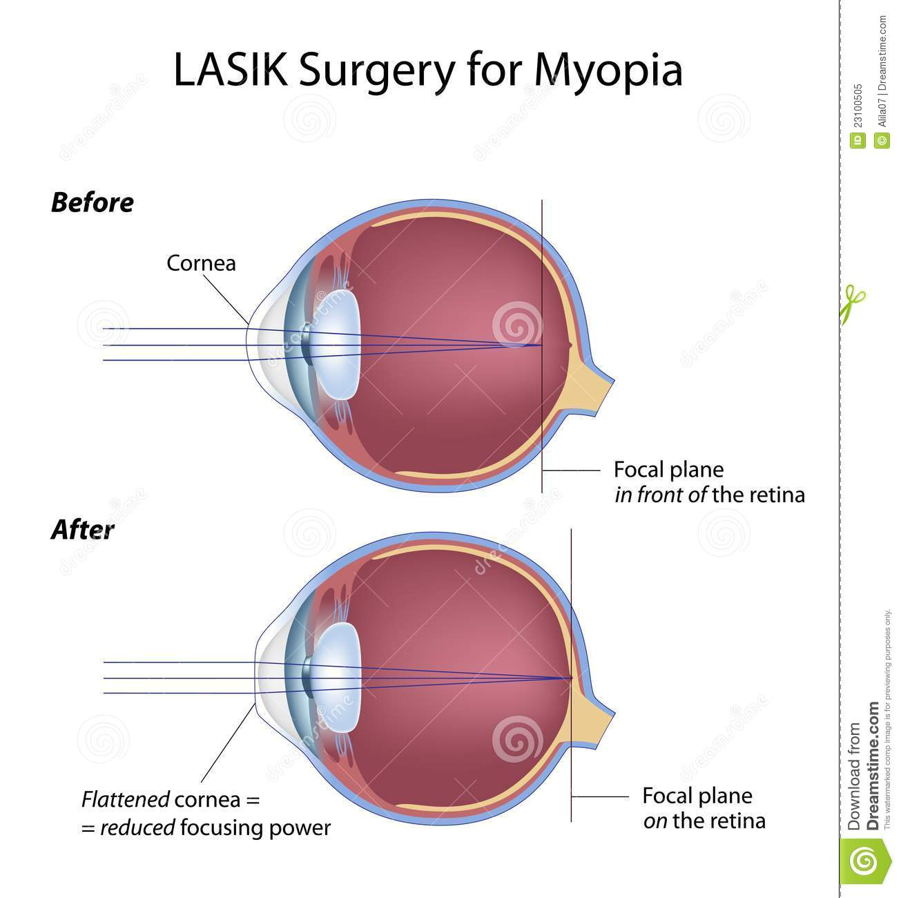 hight resolution of myopia eye before and after lasik surgery eps8