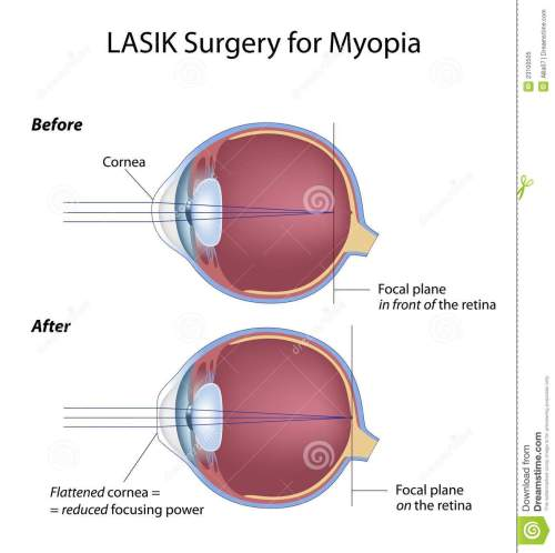 small resolution of myopia eye before and after lasik surgery eps8