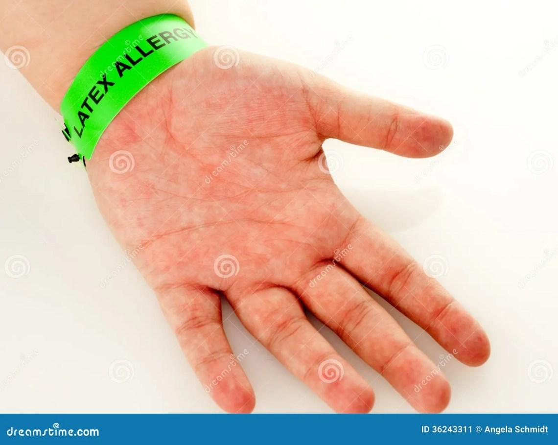 Latex Allergy Rash Stock Image - Image: 36243311