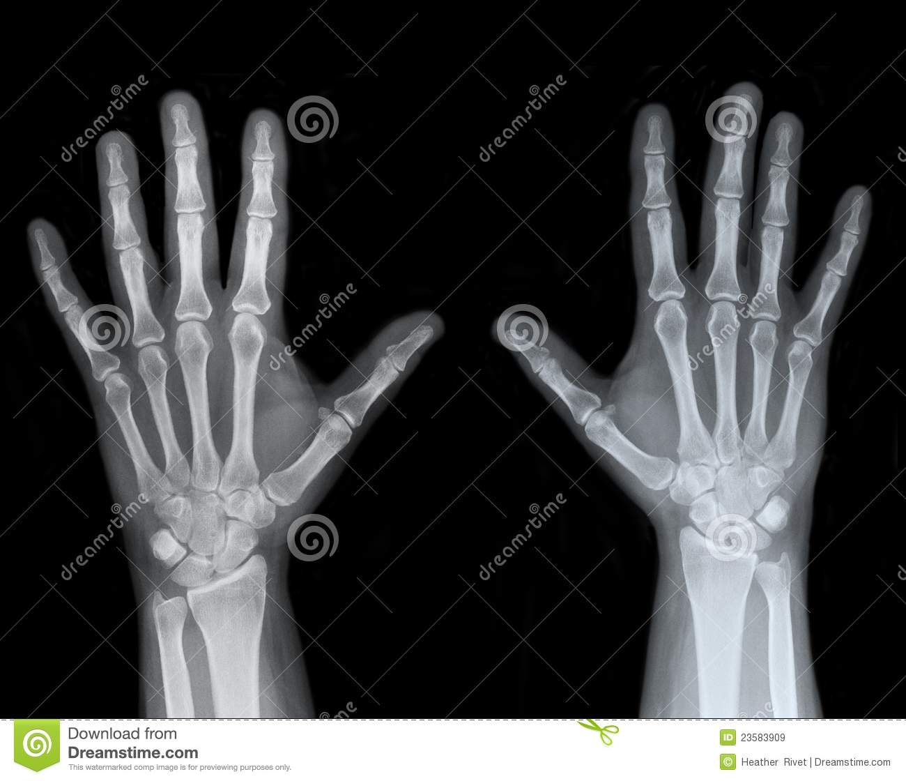 Left And Right Hand X Ray Stock Image Image Of Joints