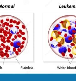 leukemia or leukaemia stock vector illustration of blood 48074147 leukemia cell cartoon leukemia cell diagram [ 1300 x 828 Pixel ]