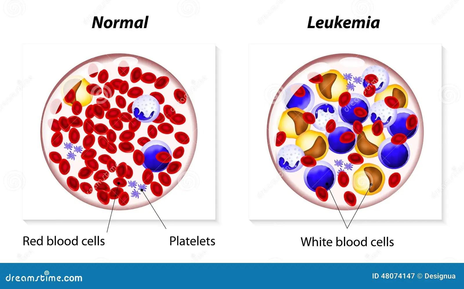 hight resolution of leukemia or leukaemia stock vector illustration of blood 48074147 leukemia cell cartoon leukemia cell diagram
