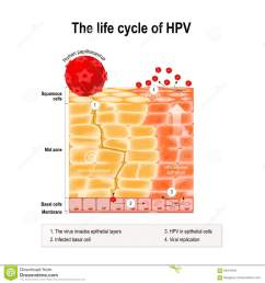 life cycle of hpv in the human epithelium hpv human papillomavirus infection which causes warts and cervical cancer carcinoma of cervix malignant  [ 1300 x 1390 Pixel ]