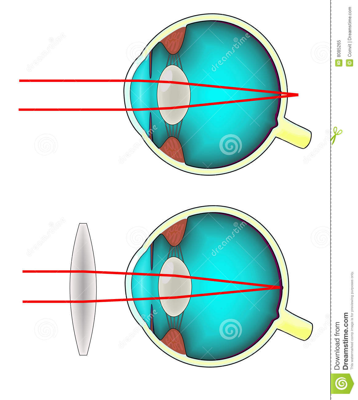 hight resolution of an anatomical diagram of a longsighted human eye corrected with a convex lens