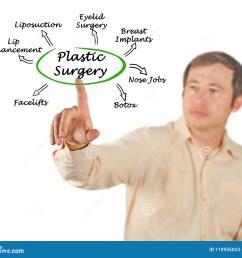 diagram of plastic surgery [ 1300 x 1128 Pixel ]