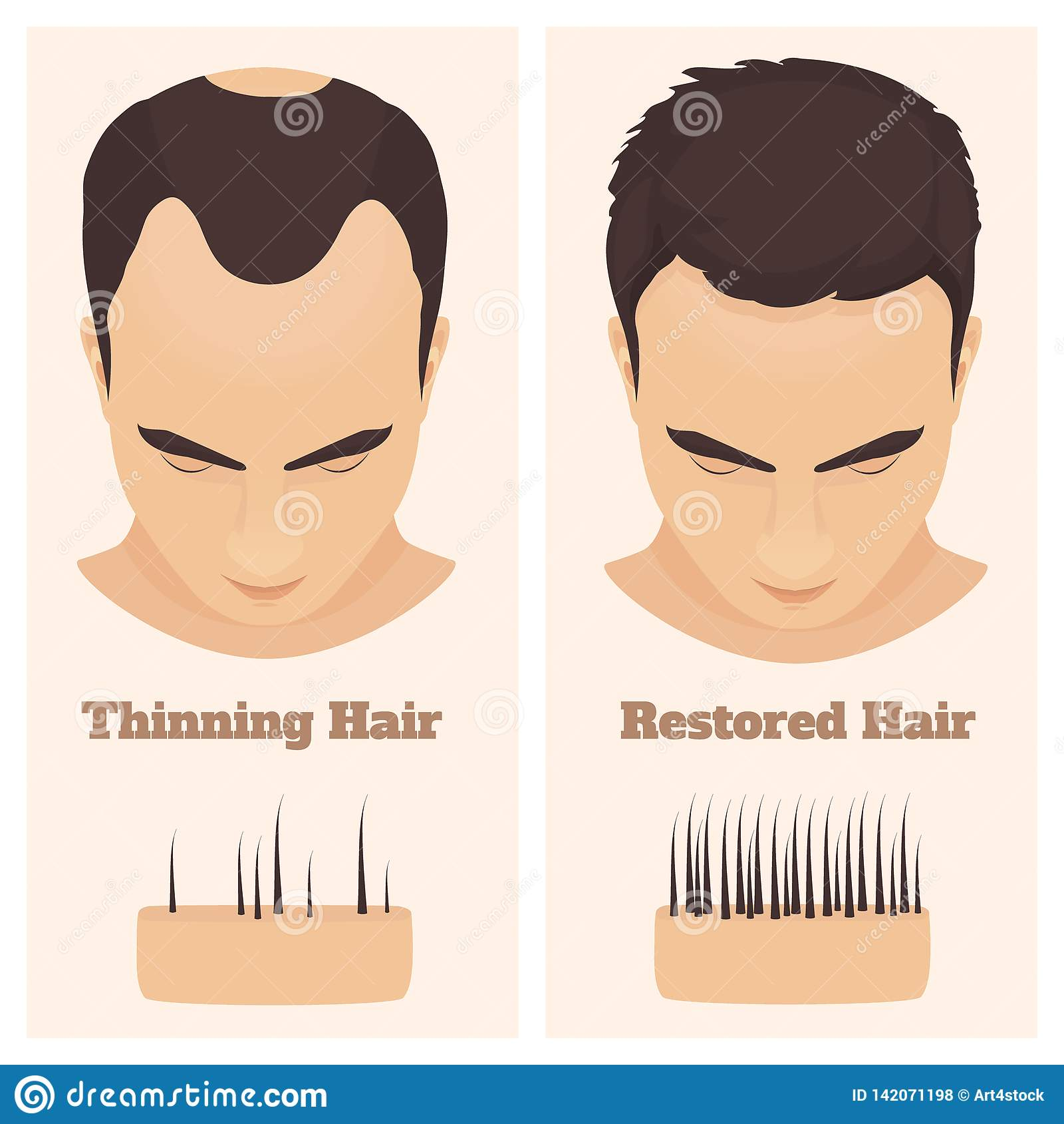 hight resolution of man with thinning and restored hair male pattern alopecia set with skin cross section diagram before and after concept vector illustration