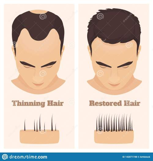 small resolution of man with thinning and restored hair male pattern alopecia set with skin cross section diagram before and after concept vector illustration