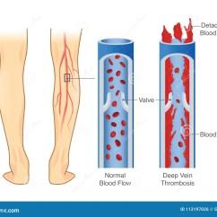 Leg Venous Diagram Electrical Sub Panel Wiring Medical Of Deep Vein Thrombosis At Area Stock