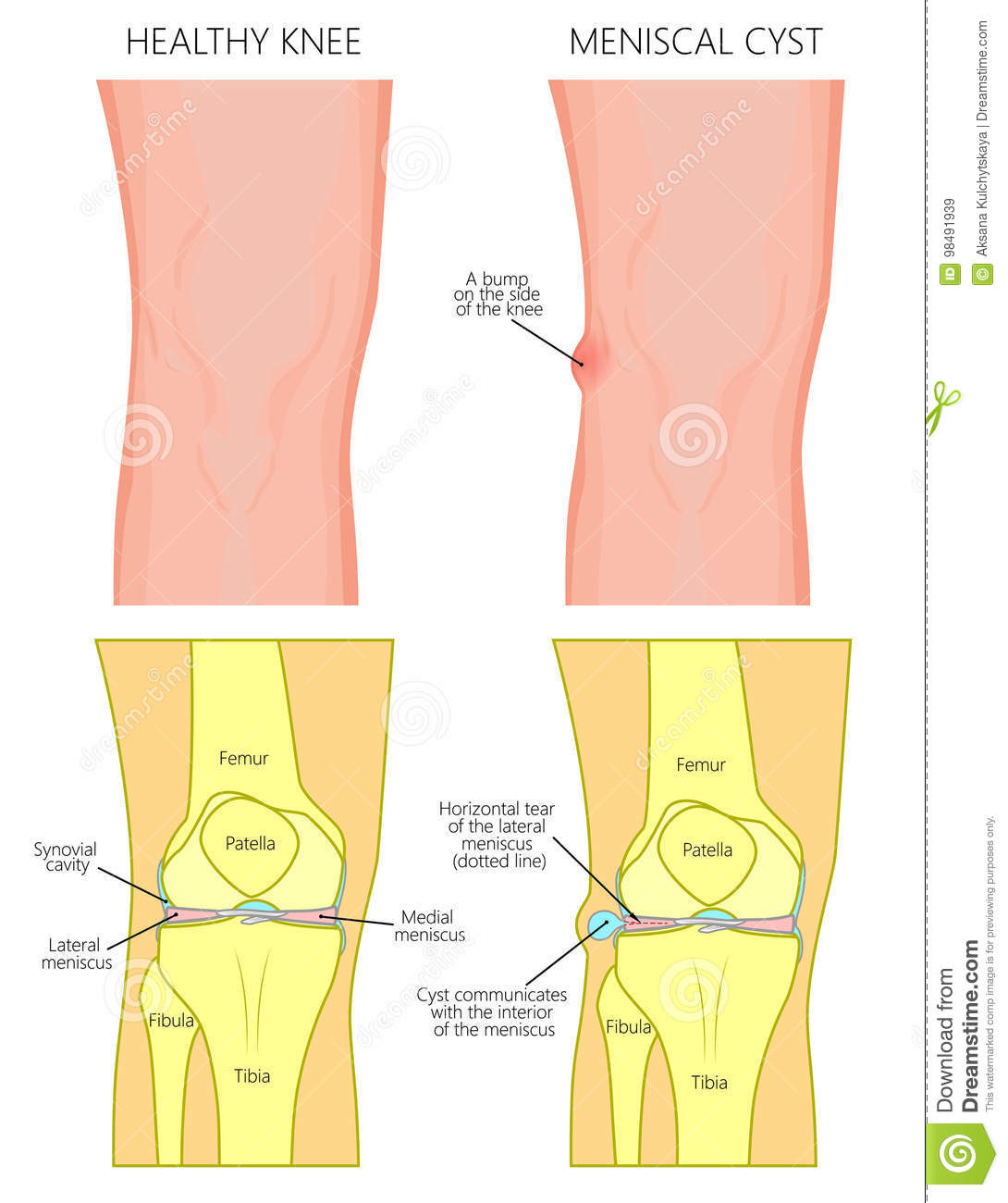 hight resolution of vector illustration of a healthy human knee joint and unhealthy knee with horizontal tear of meniscus and meniscal cyst front anterior view of knee