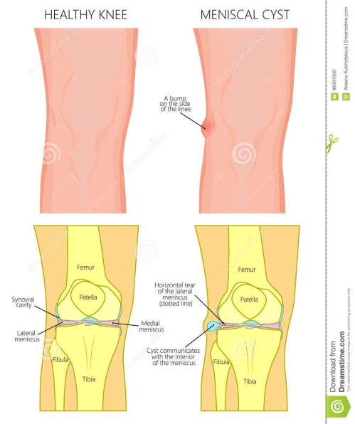small resolution of vector illustration of a healthy human knee joint and unhealthy knee with horizontal tear of meniscus and meniscal cyst front anterior view of knee